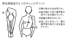 就活中の脊椎側湾症の方